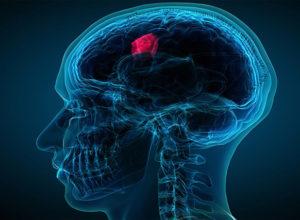 Treatment Plan for Brain Cancer