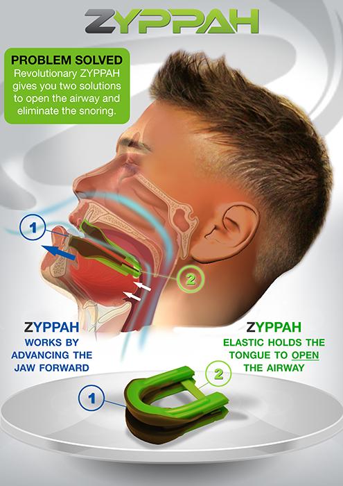 Zyppah Cons