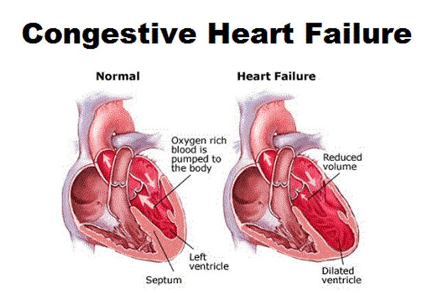 Congestive Heart Failure Causes
