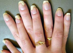 Nail Fungus Before it Harms