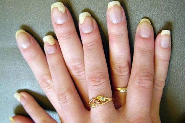 7 Symptoms To Spot The Nail Fungus Before it Harms