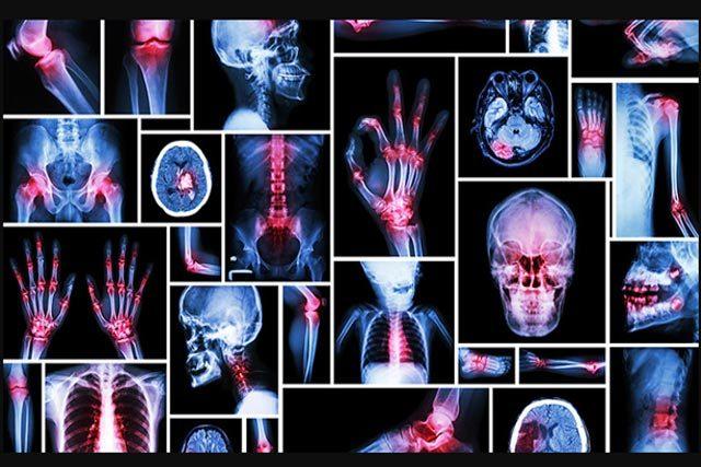 Do Pain Management Specialists Treat Problems Like Fibromyalgia?