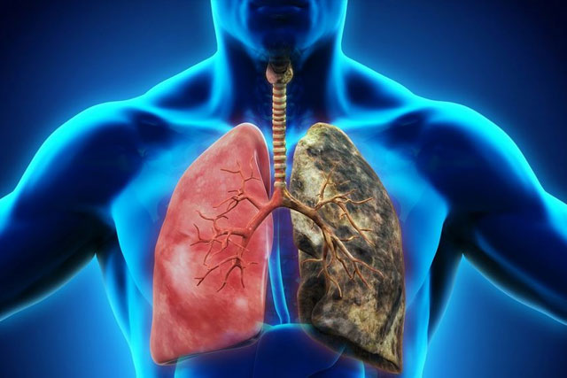 Chronic Respiratory Disorders